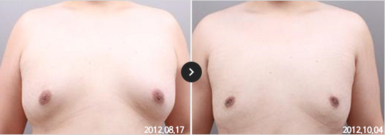 365mc BEFORE & AFTER